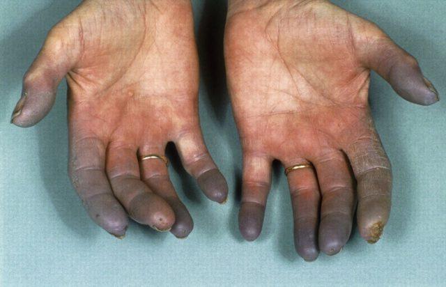 Buerger Hastalığı Nedir?