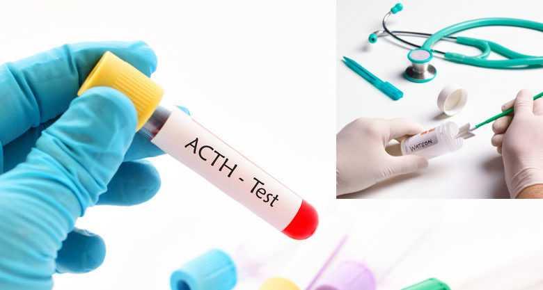 ACTH Nedir? ACTH Normal Değerleri Kaç Olmalı?