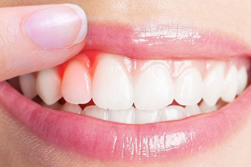 Diş Eti Çekilmesi İçin Doğal Tedavi Yöntemleri Nelerdir?