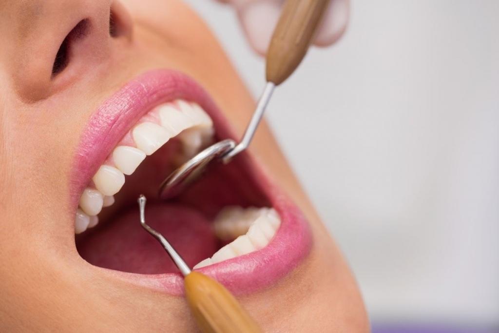 Diş Tartarı Nasıl Temizlenir?
