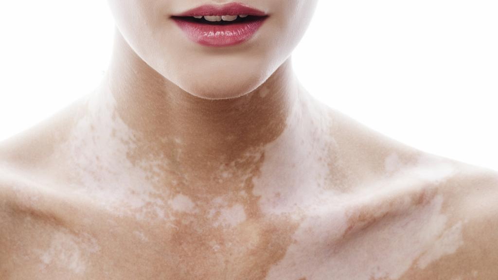 Vitiligo Nedir? Vitiligo Nedenleri