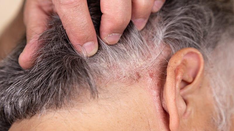 Seboreik Dermatit Nedir? | Seboreik Dermatit Tedavisi Var Mıdır?