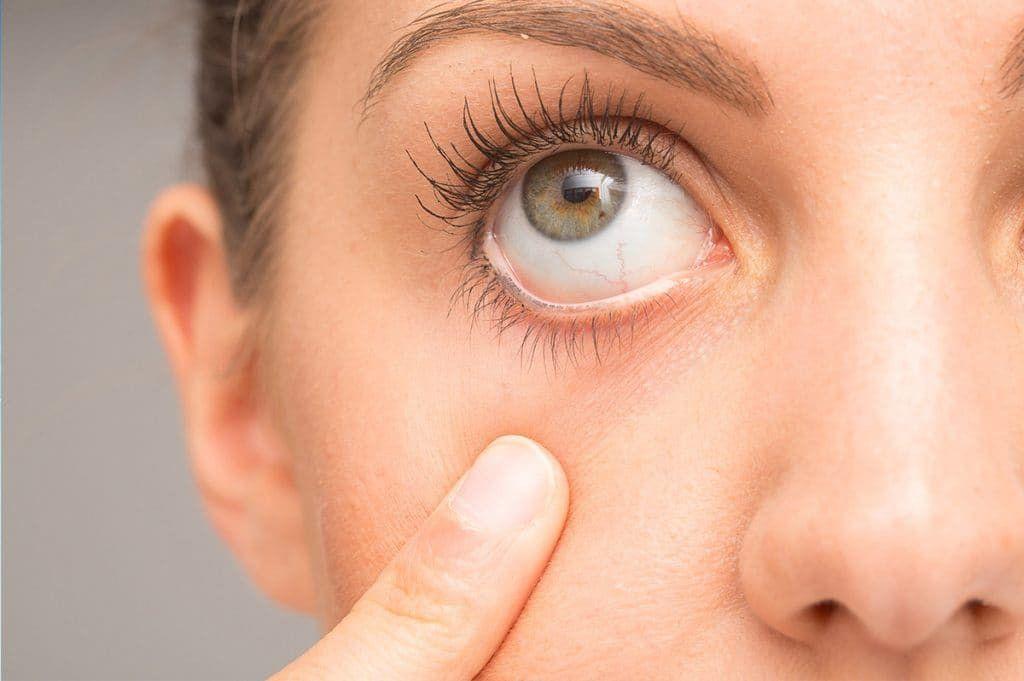 Göz Kuruluğu Nedir? Sorunlar Ve Tedavi Yöntemleri