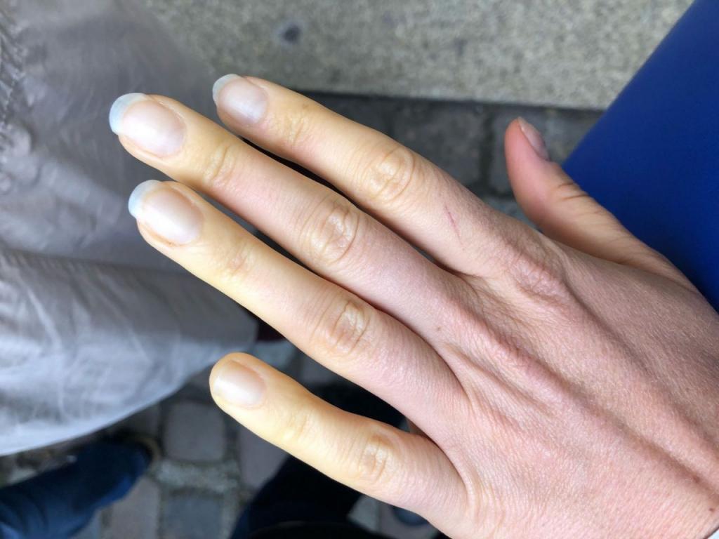 Raynaud Fenomeni Nedir? Reyno Hastalığının Belirtileri ve Tedavisi