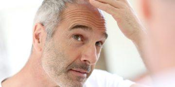 Kroner Kalp Hastalıkları ve Kellik Arasında Bir İlişki Var Mıdır?