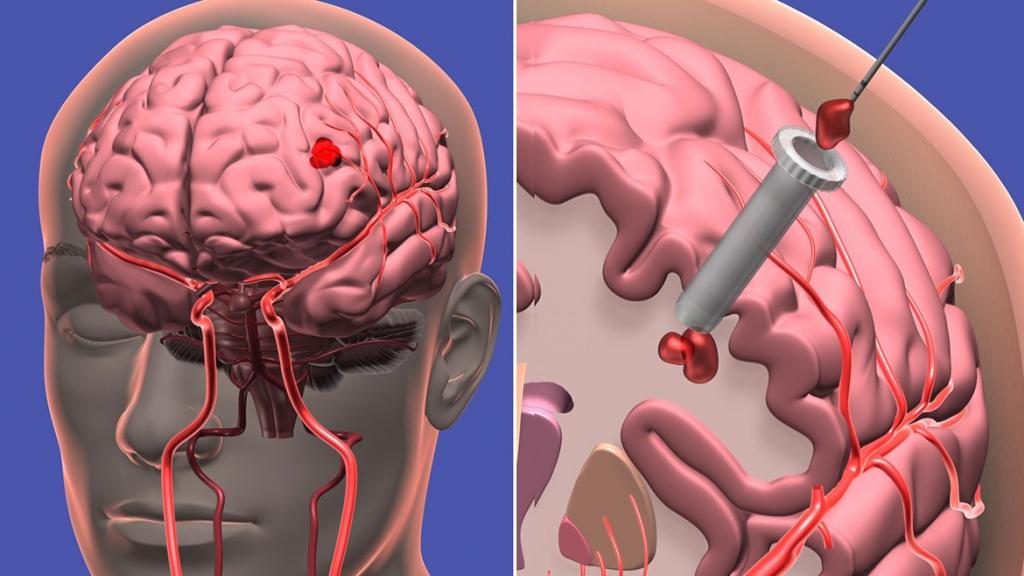 Beyin Kanaması Tedavisi Nedir?