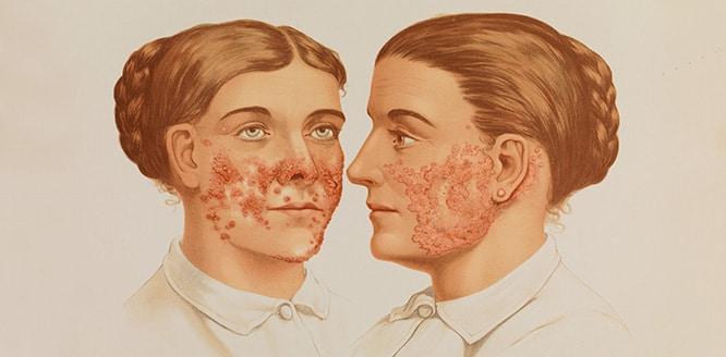 Cüzzam (Lepra) Nedir? Nasıl bulaşır? Belirtileri ve Tedavisi
