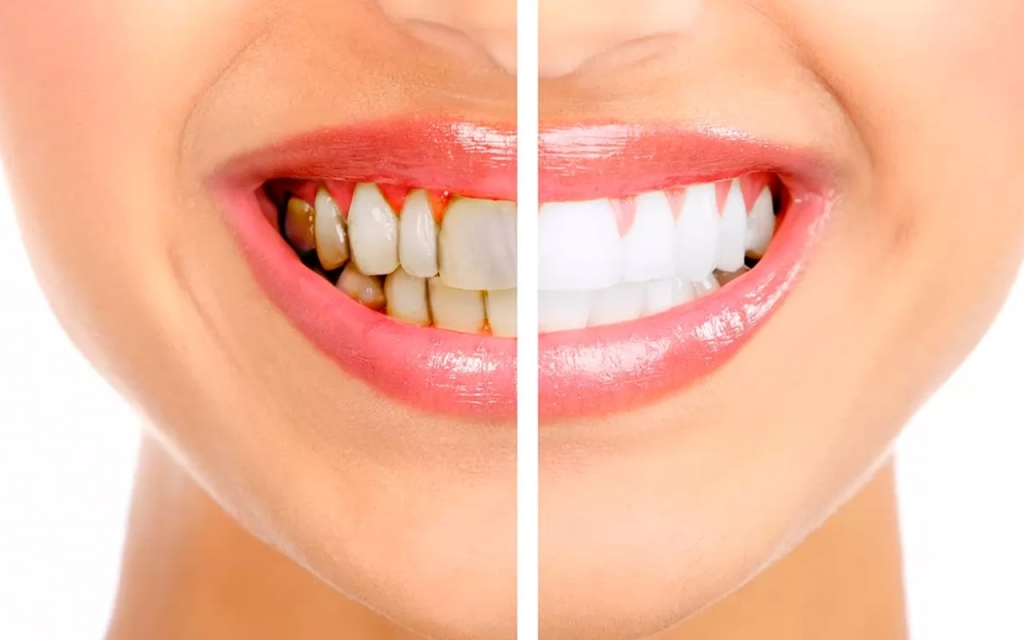 Diş Taşı Neden Olur? Nasıl Yemizlenir?