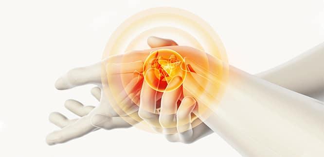 Karpal Tünel Sendromu Nedir? Nedenleri, Belirtileri ve Tedavisi