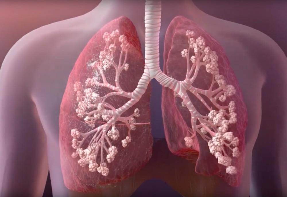 Kistik fibrozis nedir, neden olur?
