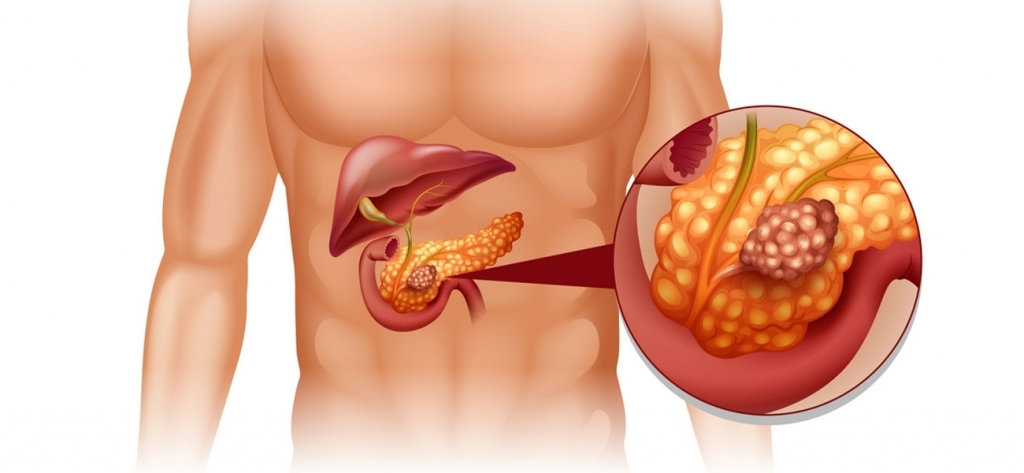 Pankreas kanseri neden olur? Belirtileri ve tedavisi
