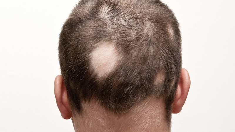 Saçkıran nedir, neden olur?