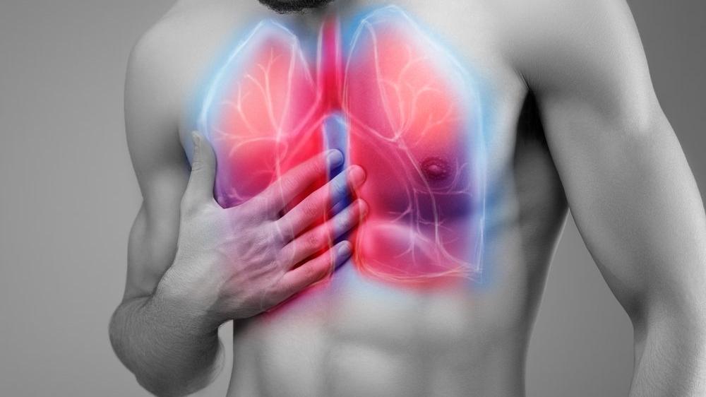 Akciğerde Su Toplaması (Plörezi) Nedir