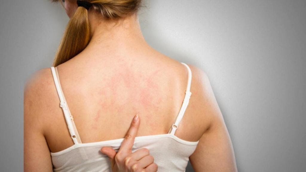 Cilt Enfeksiyonları Nelerdir?